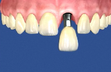 Pedido Servicio de Implantes