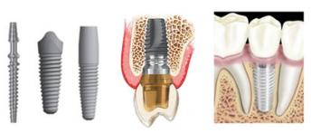 Pedido Servicio de Implantologia