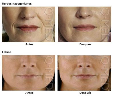 Pedido Servicio de Dermatologia Estetica