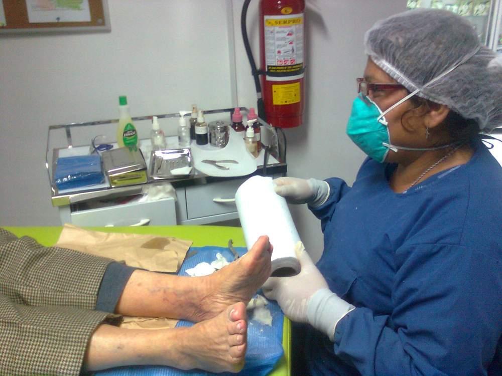 Pedido Servicio de Podología: pie diabético, hongos en las uñas, cayos, uñeros y mucho mas