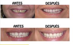 Estetica odontologica