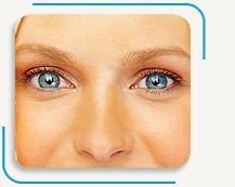 Blefaroplastía (Cirugía de los párpados)