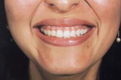 Tratamiento de dientes en los niños y adultos
