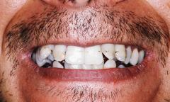 Dentistry and tooth restoration