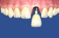 Servicio de Implantes