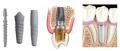 Servicio de Implantologia