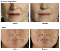 Servicio de Dermatologia Estetica
