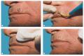 Servicio de Cirugía Dermatológica